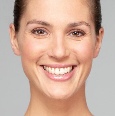 Lächelnde Frau mit WIN Zahnspange